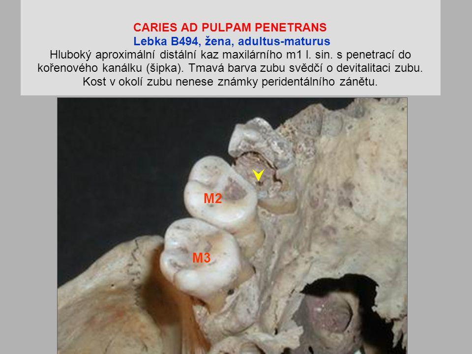 CARIES AD PULPAM PENETRANS Lebka B494, žena, adultus-maturus Hluboký aproximální distální kaz maxilárního m1 l. sin. s penetrací do kořenového kanálku (šipka). Tmavá barva zubu svědčí o devitalitaci zubu. Kost v okolí zubu nenese známky peridentálního zánětu.