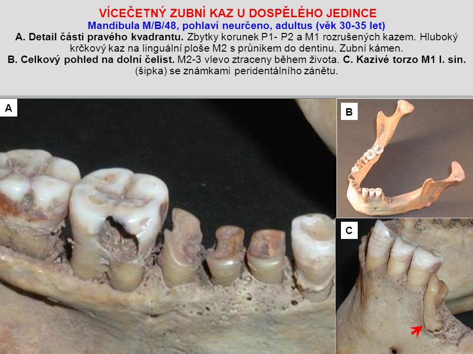 VÍCEČETNÝ ZUBNÍ KAZ U DOSPĚLÉHO JEDINCE Mandibula M/B/48, pohlaví neurčeno, adultus (věk 30-35 let) A. Detail části pravého kvadrantu. Zbytky korunek P1- P2 a M1 rozrušených kazem. Hluboký krčkový kaz na linguální ploše M2 s průnikem do dentinu. Zubní kámen. B. Celkový pohled na dolní čelist. M2-3 vlevo ztraceny během života. C. Kazivé torzo M1 l. sin. (šipka) se známkami peridentálního zánětu.