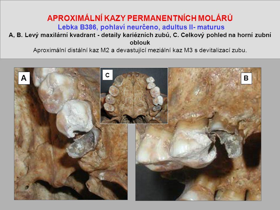 APROXIMÁLNÍ KAZY PERMANENTNÍCH MOLÁRŮ Lebka B386, pohlaví neurčeno, adultus II- maturus A, B. Levý maxilární kvadrant - detaily kariézních zubů, C. Celkový pohled na horní zubní oblouk Aproximální distální kaz M2 a devastující meziální kaz M3 s devitalizací zubu.