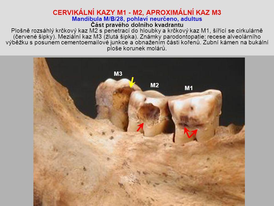 CERVIKÁLNÍ KAZY M1 - M2, APROXIMÁLNÍ KAZ M3 Mandibula M/B/28, pohlaví neurčeno, adultus Část pravého dolního kvadrantu Plošně rozsáhlý krčkový kaz M2 s penetrací do hloubky a krčkový kaz M1, šířící se cirkulárně (červené šipky). Meziální kaz M3 (žlutá šipka). Známky parodontopatie: recese alveolárního výběžku s posunem cementoemailové junkce a obnažením části kořenů. Zubní kámen na bukální ploše korunek molárů.