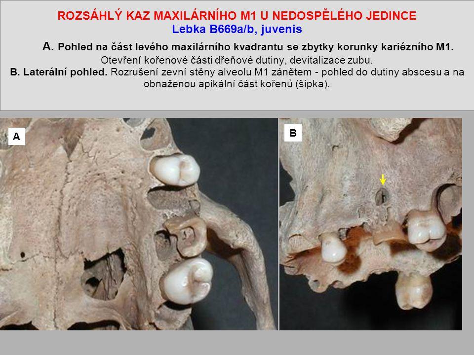 ROZSÁHLÝ KAZ MAXILÁRNÍHO M1 U NEDOSPĚLÉHO JEDINCE Lebka B669a/b, juvenis A. Pohled na část levého maxilárního kvadrantu se zbytky korunky kariézního M1. Otevření kořenové části dřeňové dutiny, devitalizace zubu. B. Laterální pohled. Rozrušení zevní stěny alveolu M1 zánětem - pohled do dutiny abscesu a na obnaženou apikální část kořenů (šipka).