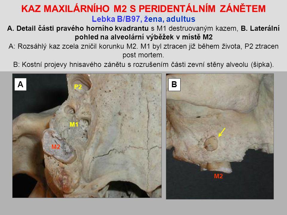 KAZ MAXILÁRNÍHO M2 S PERIDENTÁLNÍM ZÁNĚTEM Lebka B/B97, žena, adultus A. Detail části pravého horního kvadrantu s M1 destruovaným kazem, B. Laterální pohled na alveolární výběžek v místě M2 A: Rozsáhlý kaz zcela zničil korunku M2. M1 byl ztracen již během života, P2 ztracen post mortem. B: Kostní projevy hnisavého zánětu s rozrušením části zevní stěny alveolu (šipka).