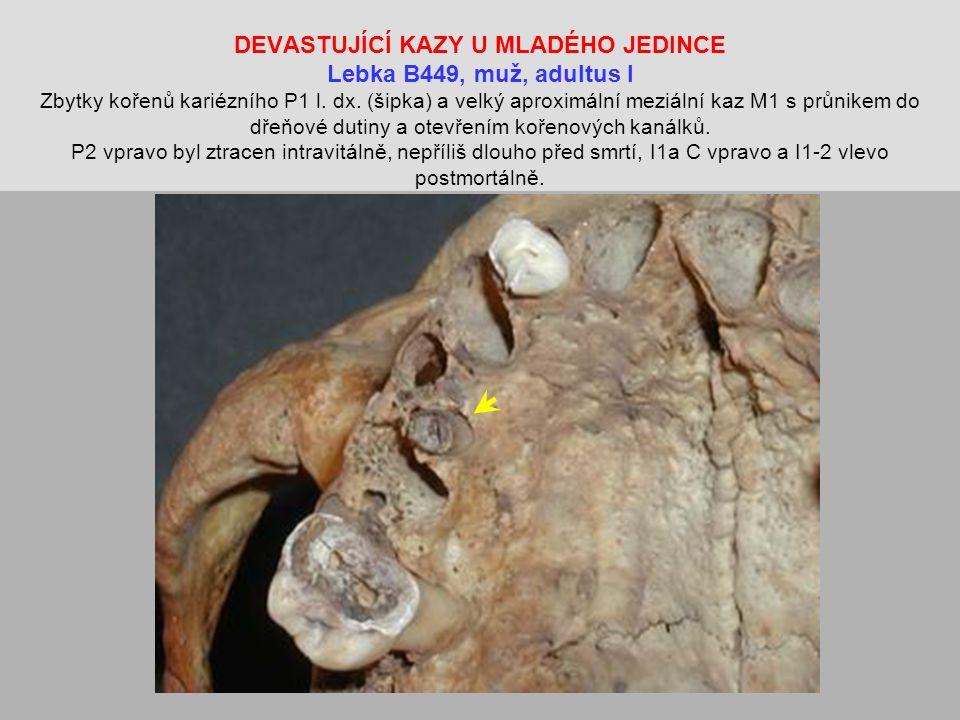 DEVASTUJÍCÍ KAZY U MLADÉHO JEDINCE Lebka B449, muž, adultus I Zbytky kořenů kariézního P1 l.