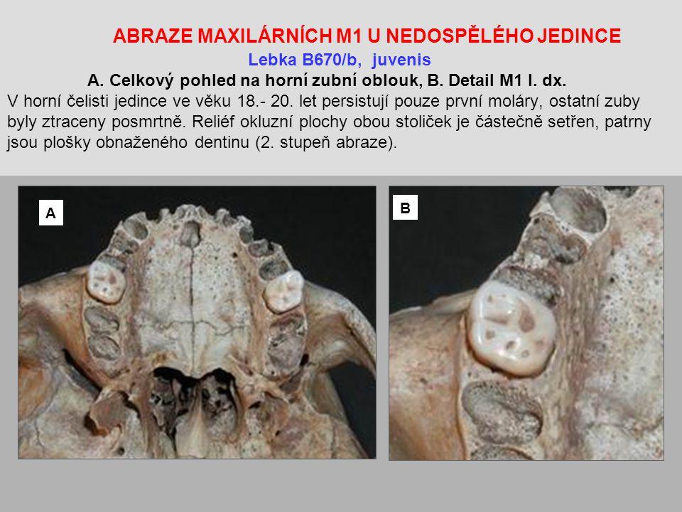 ABRAZE MAXILÁRNÍCH M1 U NEDOSPĚLÉHO JEDINCE. Lebka B670/b, juvenis A
