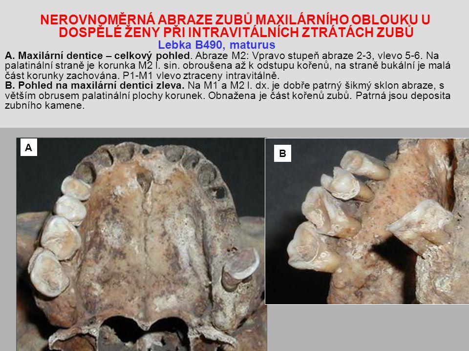 NEROVNOMĚRNÁ ABRAZE ZUBŮ MAXILÁRNÍHO OBLOUKU U DOSPĚLÉ ŽENY PŘI INTRAVITÁLNÍCH ZTRÁTÁCH ZUBŮ Lebka B490, maturus A. Maxilární dentice – celkový pohled. Abraze M2: Vpravo stupeň abraze 2-3, vlevo 5-6. Na palatinální straně je korunka M2 l. sin. obroušena až k odstupu kořenů, na straně bukální je malá část korunky zachována. P1-M1 vlevo ztraceny intravitálně. B. Pohled na maxilární dentici zleva. Na M1 a M2 l. dx. je dobře patrný šikmý sklon abraze, s větším obrusem palatinální plochy korunek. Obnažena je část kořenů zubů. Patrná jsou deposita zubního kamene.