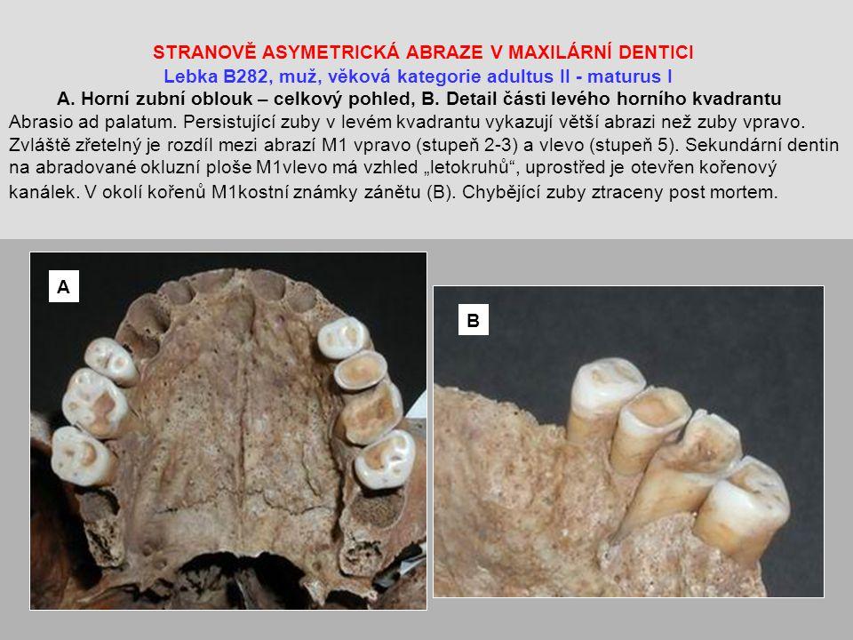 """STRANOVĚ ASYMETRICKÁ ABRAZE V MAXILÁRNÍ DENTICI Lebka B282, muž, věková kategorie adultus II - maturus I A. Horní zubní oblouk – celkový pohled, B. Detail části levého horního kvadrantu Abrasio ad palatum. Persistující zuby v levém kvadrantu vykazují větší abrazi než zuby vpravo. Zvláště zřetelný je rozdíl mezi abrazí M1 vpravo (stupeň 2-3) a vlevo (stupeň 5). Sekundární dentin na abradované okluzní ploše M1vlevo má vzhled """"letokruhů , uprostřed je otevřen kořenový kanálek. V okolí kořenů M1kostní známky zánětu (B). Chybějící zuby ztraceny post mortem."""