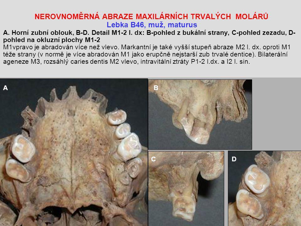 NEROVNOMĚRNÁ ABRAZE MAXILÁRNÍCH TRVALÝCH MOLÁRŮ Lebka B46, muž, maturus A. Horní zubní oblouk, B-D. Detail M1-2 l. dx: B-pohled z bukální strany, C-pohled zezadu, D-pohled na okluzní plochy M1-2 M1vpravo je abradován více než vlevo. Markantní je také vyšší stupeň abraze M2 l. dx. oproti M1 téže strany (v normě je více abradován M1 jako erupčně nejstarší zub trvalé dentice). Bilaterální ageneze M3, rozsáhlý caries dentis M2 vlevo, intravitální ztráty P1-2 l.dx. a I2 l. sin.