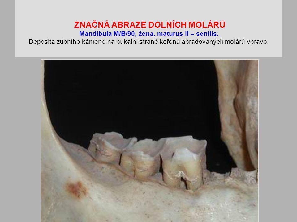 ZNAČNÁ ABRAZE DOLNÍCH MOLÁRŮ Mandibula M/B/90, žena, maturus II – senilis.