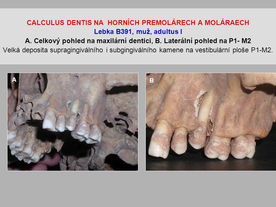 CALCULUS DENTIS NA HORNÍCH PREMOLÁRECH A MOLÁRAECH Lebka B391, muž, adultus I A. Celkový pohled na maxilární dentici, B. Laterální pohled na P1- M2 Velká deposita supragingiválního i subgingiválního kamene na vestibulární ploše P1-M2.