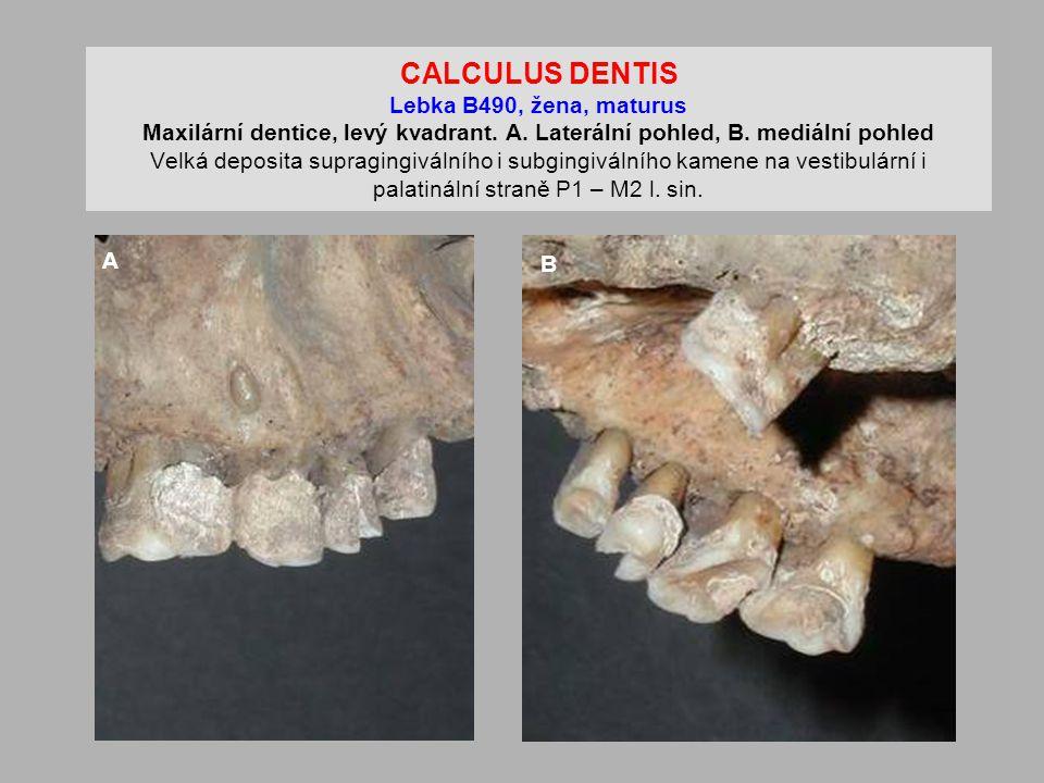 CALCULUS DENTIS Lebka B490, žena, maturus Maxilární dentice, levý kvadrant. A. Laterální pohled, B. mediální pohled Velká deposita supragingiválního i subgingiválního kamene na vestibulární i palatinální straně P1 – M2 l. sin.