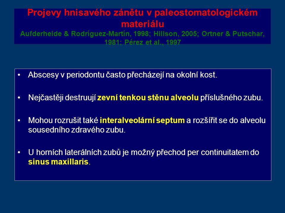 Projevy hnisavého zánětu v paleostomatologickém materiálu Aufderheide & Rodríguez-Martín, 1998; Hillson, 2005; Ortner & Putschar, 1981; Pérez et al., 1997