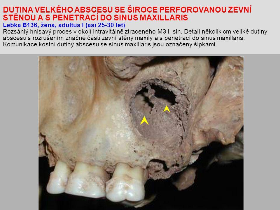 DUTINA VELKÉHO ABSCESU SE ŠIROCE PERFOROVANOU ZEVNÍ STĚNOU A S PENETRACÍ DO SINUS MAXILLARIS Lebka B136, žena, adultus I (asi 25-30 let) Rozsáhlý hnisavý proces v okolí intravitálně ztraceného M3 l.