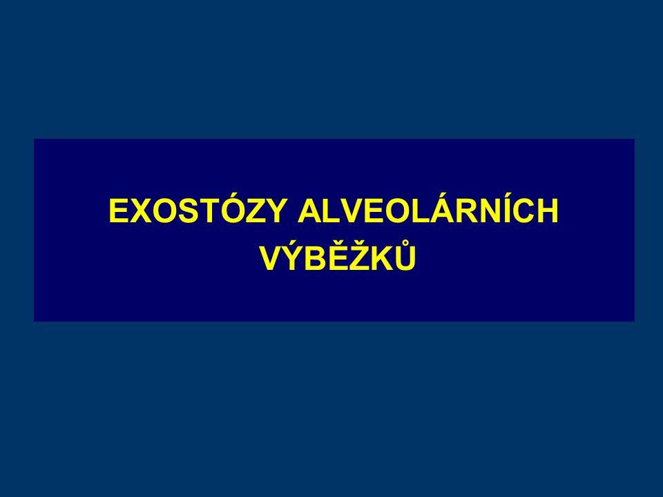 EXOSTÓZY ALVEOLÁRNÍCH