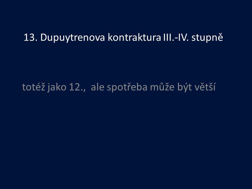 13. Dupuytrenova kontraktura III.-IV. stupně