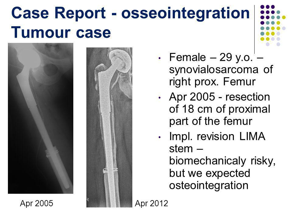 Case Report - osseointegration Tumour case