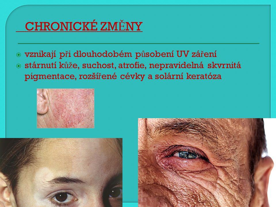 CHRONICKÉ ZMĚNY vznikají při dlouhodobém působení UV záření