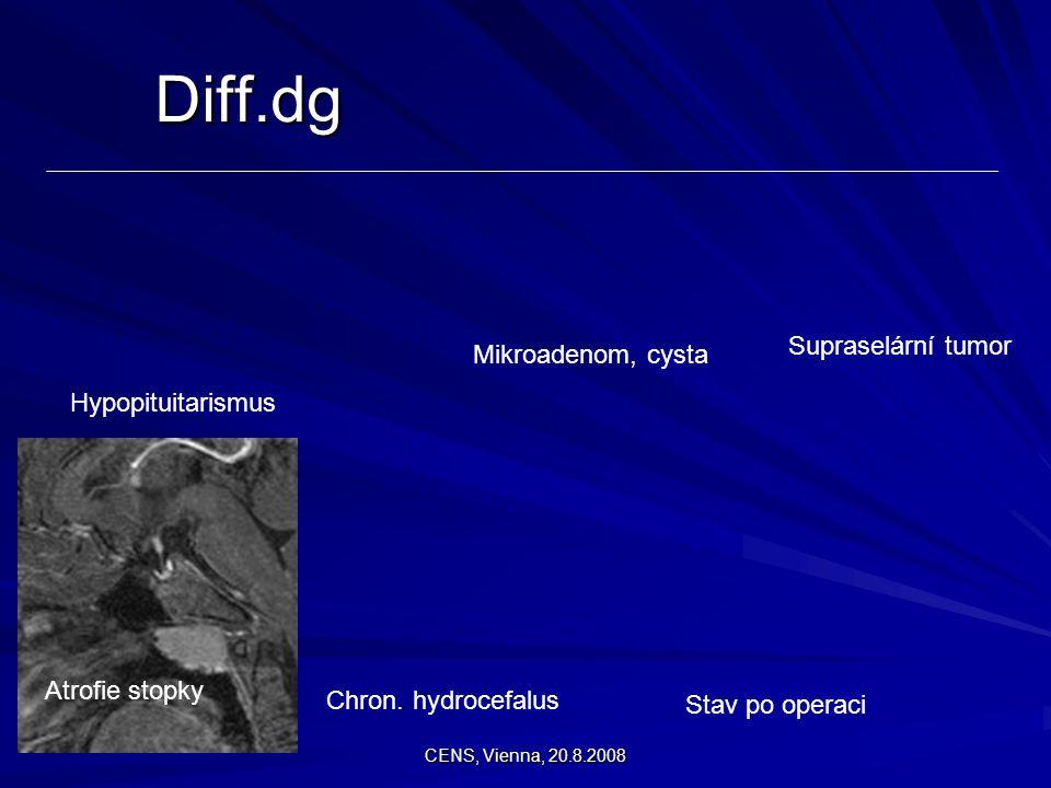Diff.dg Supraselární tumor Mikroadenom, cysta Hypopituitarismus