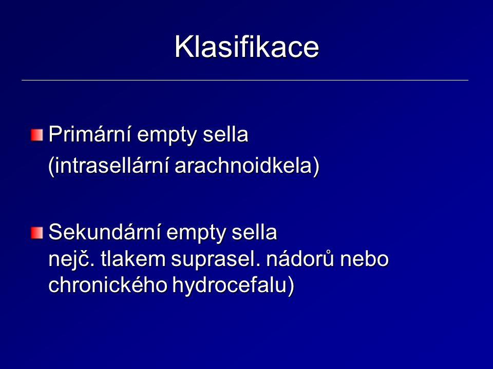 Klasifikace Primární empty sella (intrasellární arachnoidkela)