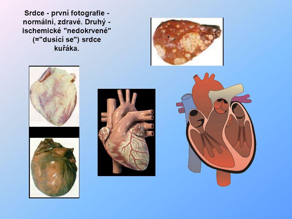 Srdce - první fotografie - normální, zdravé