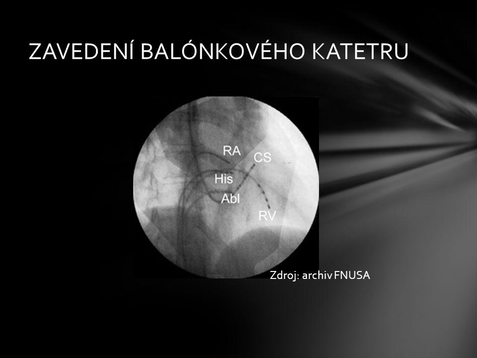 ZAVEDENÍ BALÓNKOVÉHO KATETRU