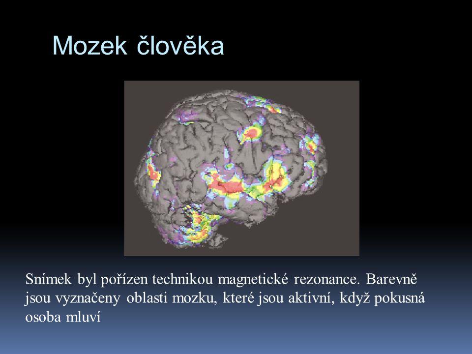 Mozek člověka Snímek byl pořízen technikou magnetické rezonance.