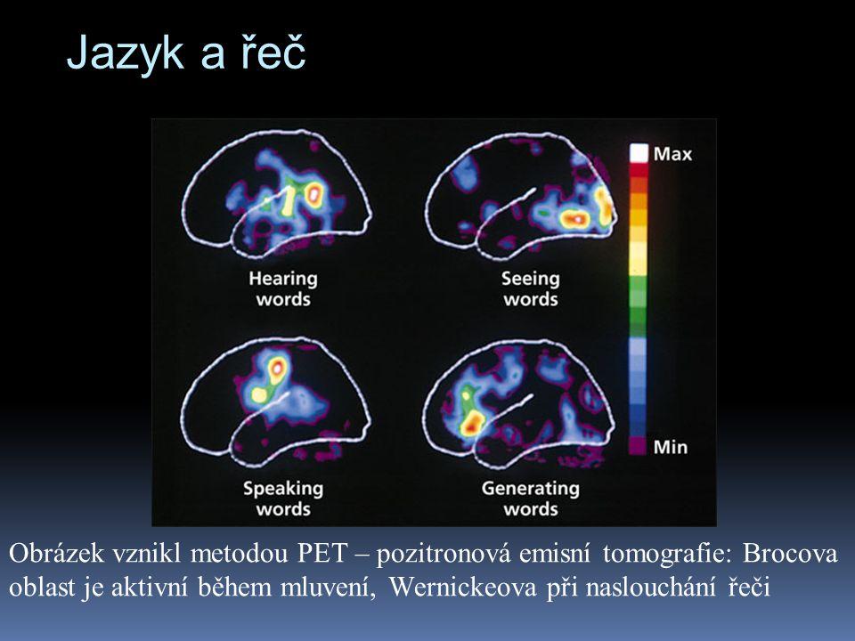 Jazyk a řeč Obrázek vznikl metodou PET – pozitronová emisní tomografie: Brocova oblast je aktivní během mluvení, Wernickeova při naslouchání řeči.