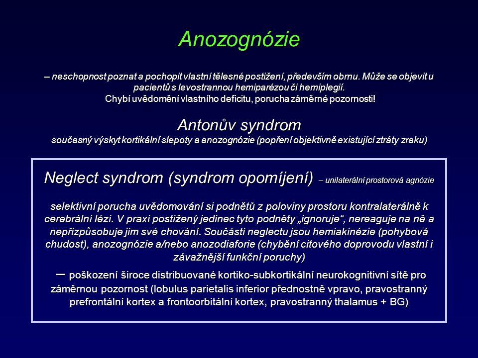 Anozognózie – neschopnost poznat a pochopit vlastní tělesné postižení, především obrnu.