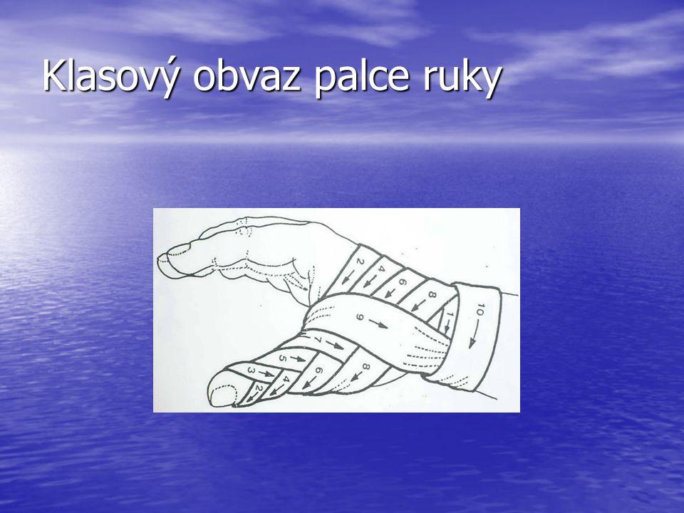 Klasový obvaz palce ruky