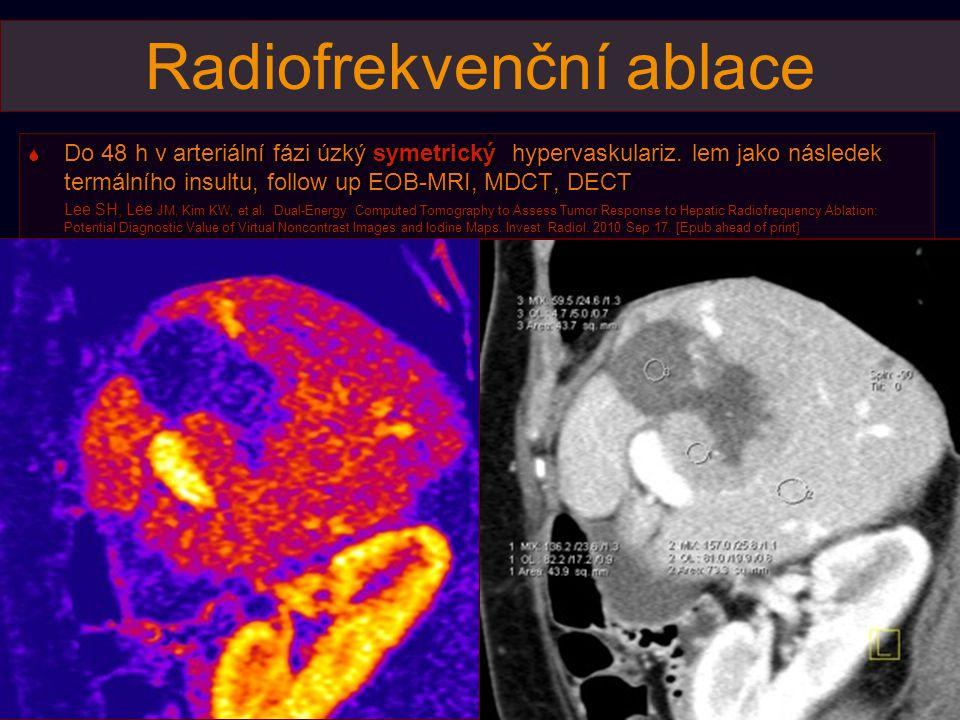 Radiofrekvenční ablace
