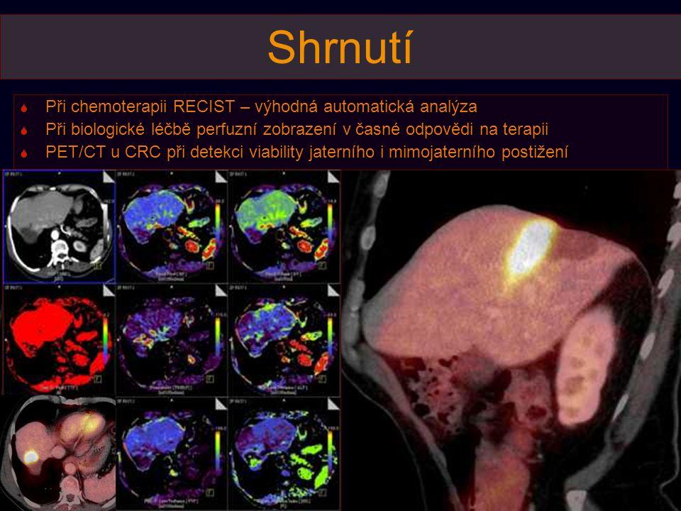 Shrnutí Při chemoterapii RECIST – výhodná automatická analýza