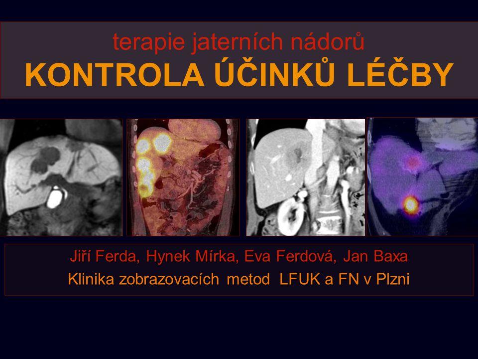 terapie jaterních nádorů KONTROLA ÚČINKŮ LÉČBY