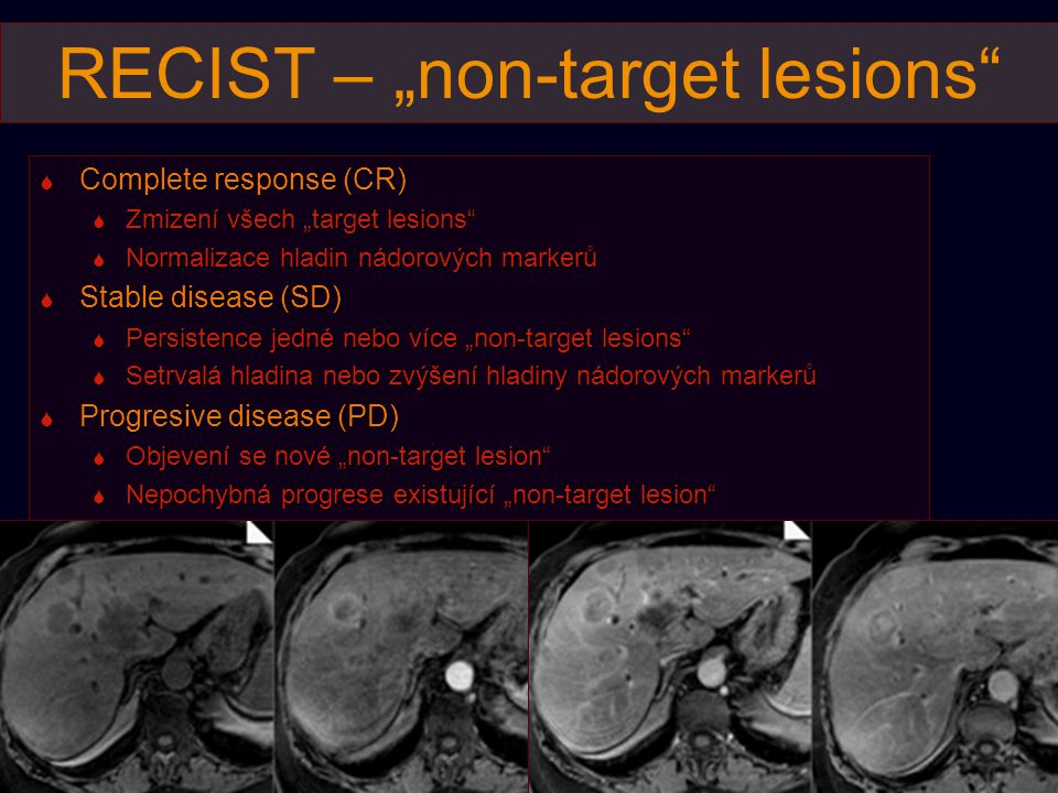 "RECIST – ""non-target lesions"