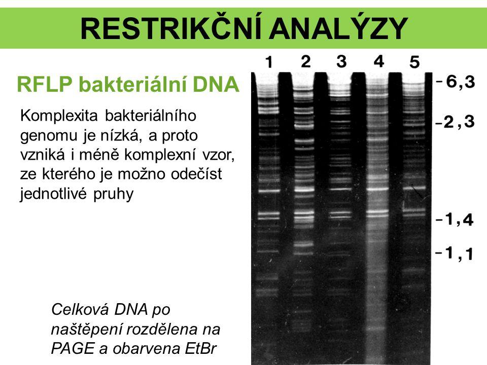 RESTRIKČNÍ ANALÝZY RFLP bakteriální DNA