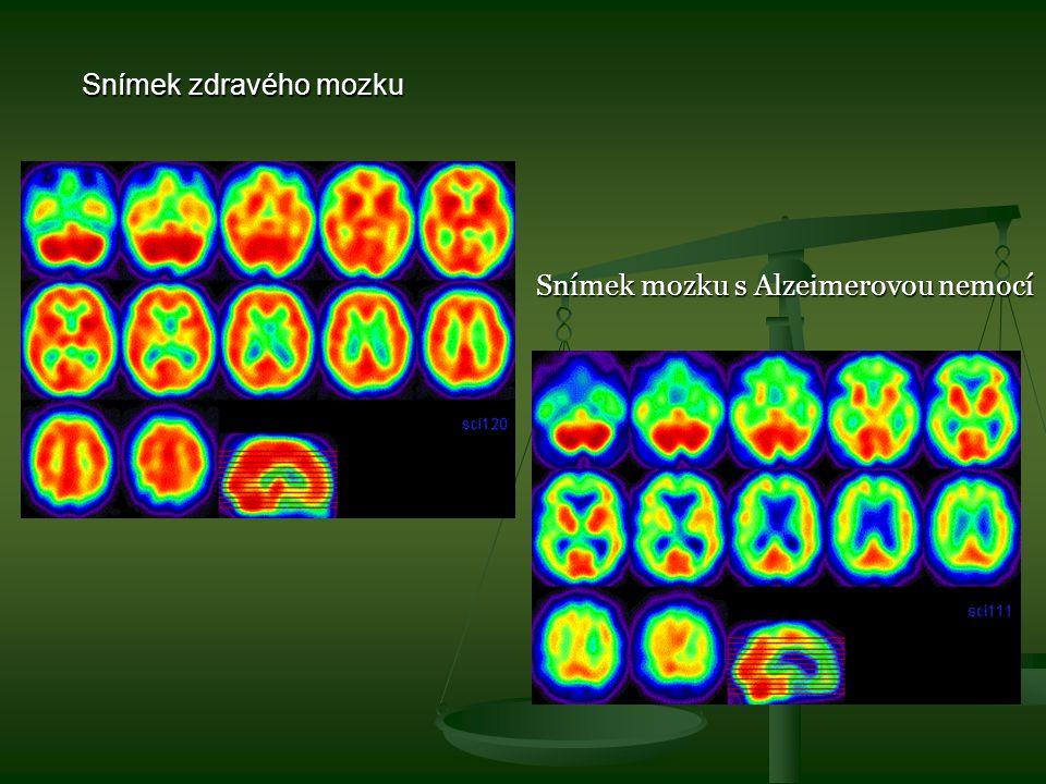 Snímek mozku s Alzeimerovou nemocí