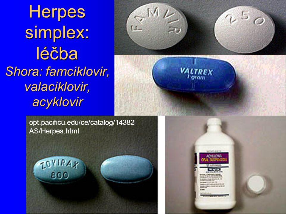 Herpes simplex: léčba Shora: famciklovir, valaciklovir, acyklovir