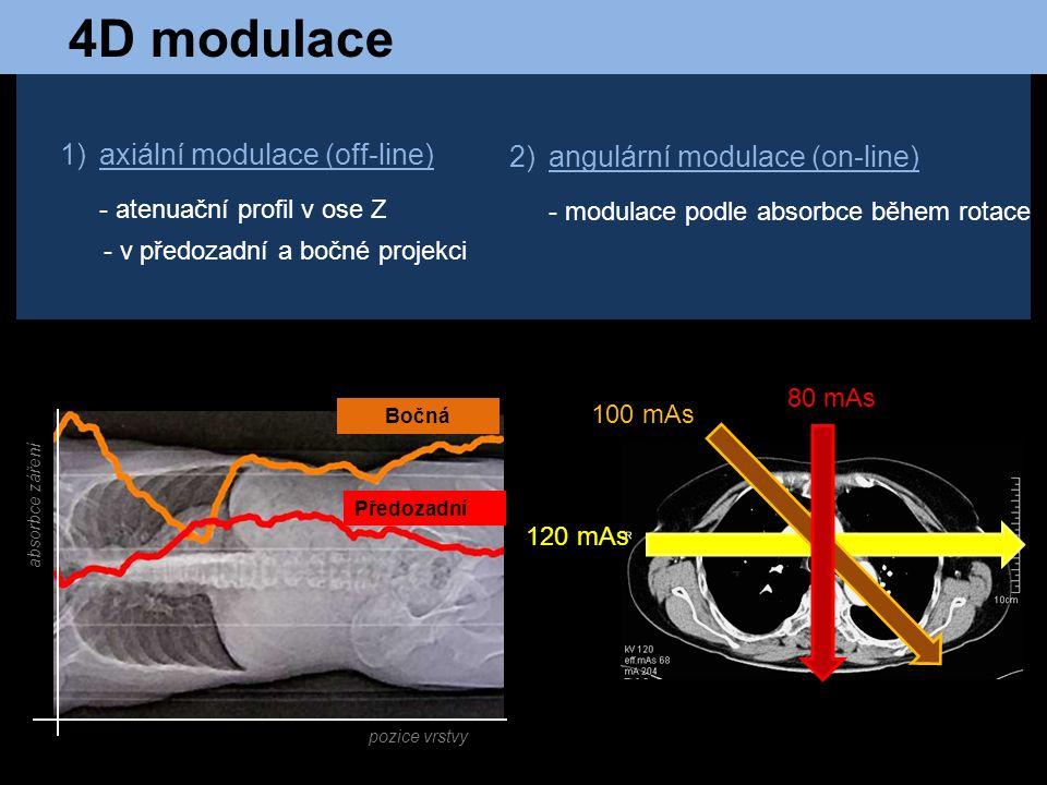 4D modulace axiální modulace (off-line) angulární modulace (on-line)