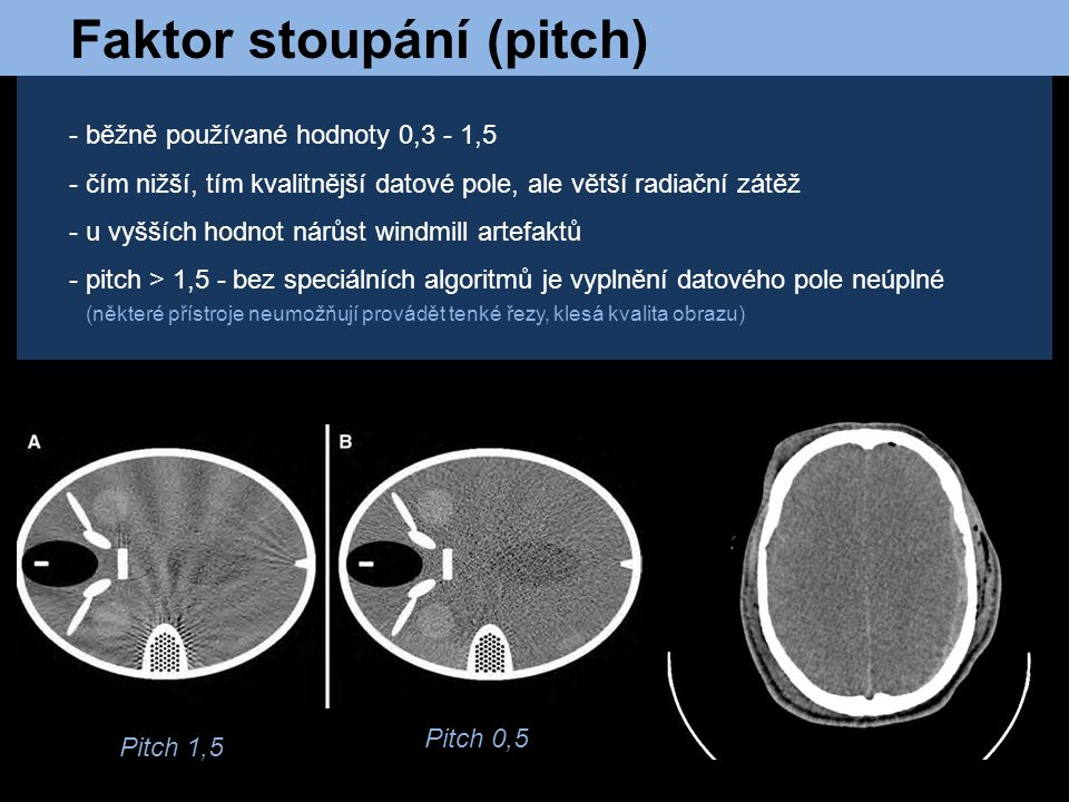 Faktor stoupání (pitch)