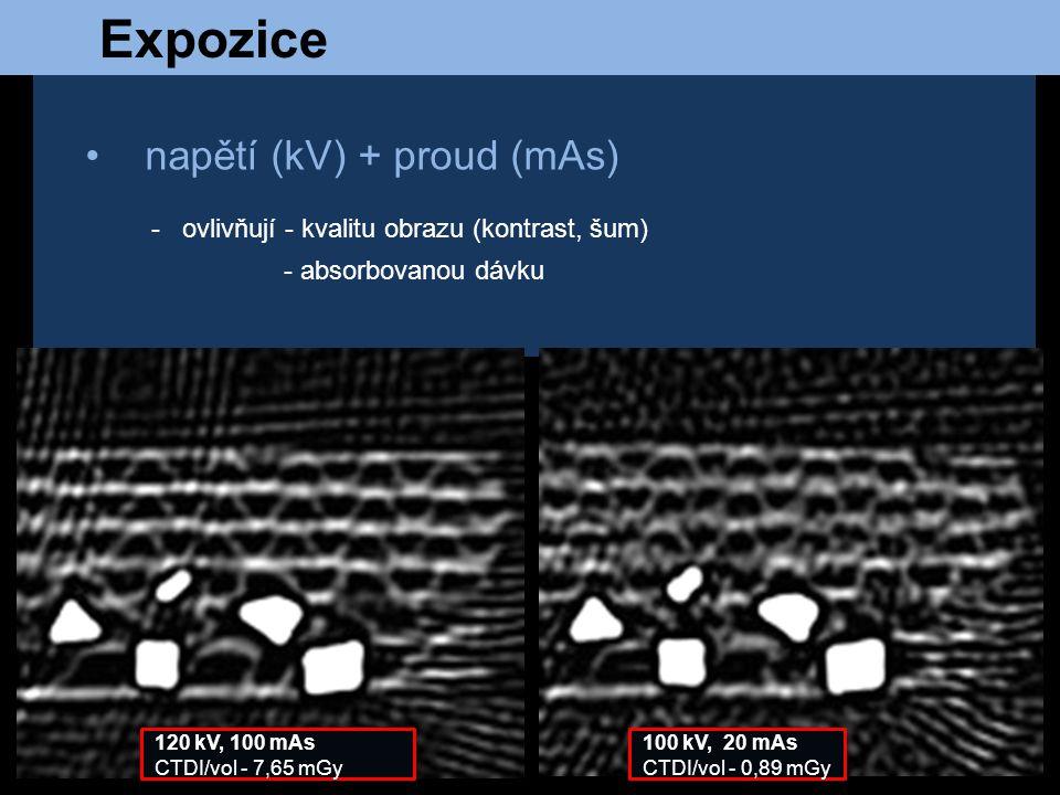 Expozice napětí (kV) + proud (mAs)
