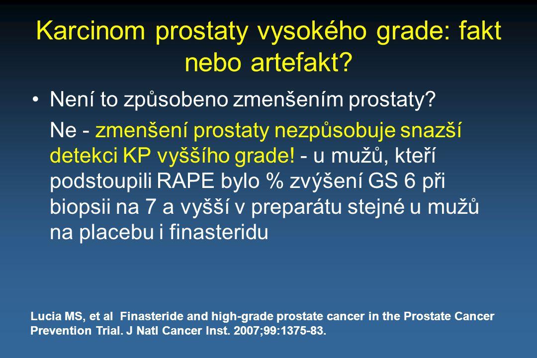 Karcinom prostaty vysokého grade: fakt nebo artefakt