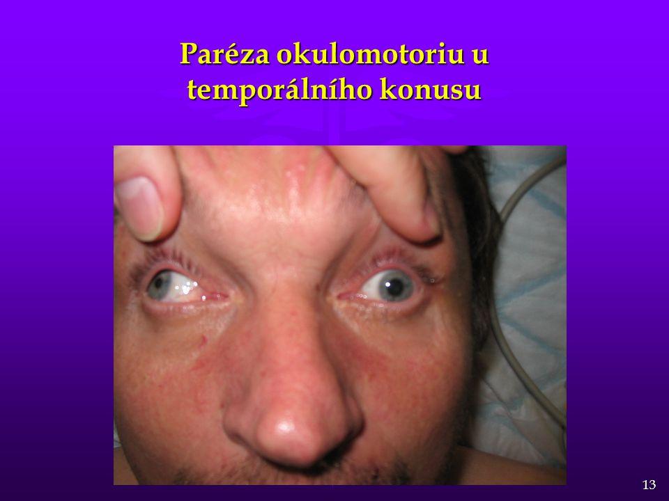 Paréza okulomotoriu u temporálního konusu