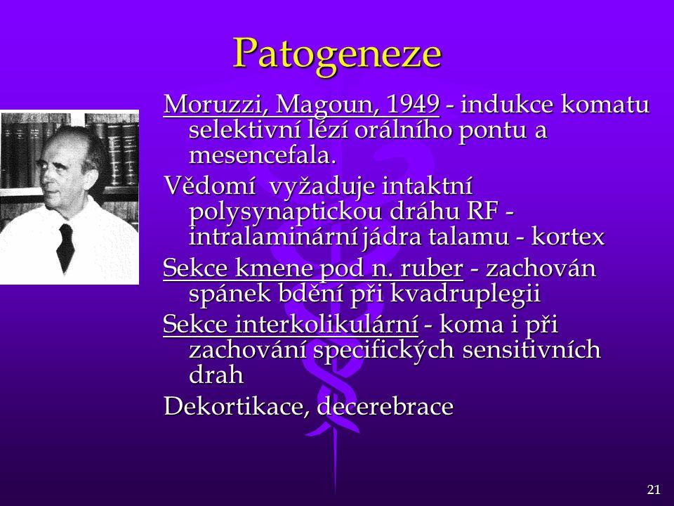 Patogeneze Moruzzi, Magoun, 1949 - indukce komatu selektivní lézí orálního pontu a mesencefala.