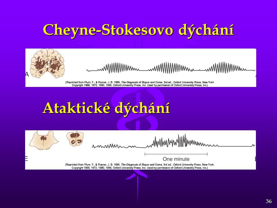 Cheyne-Stokesovo dýchání