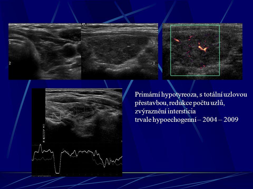 Primární hypotyreoza, s totální uzlovou