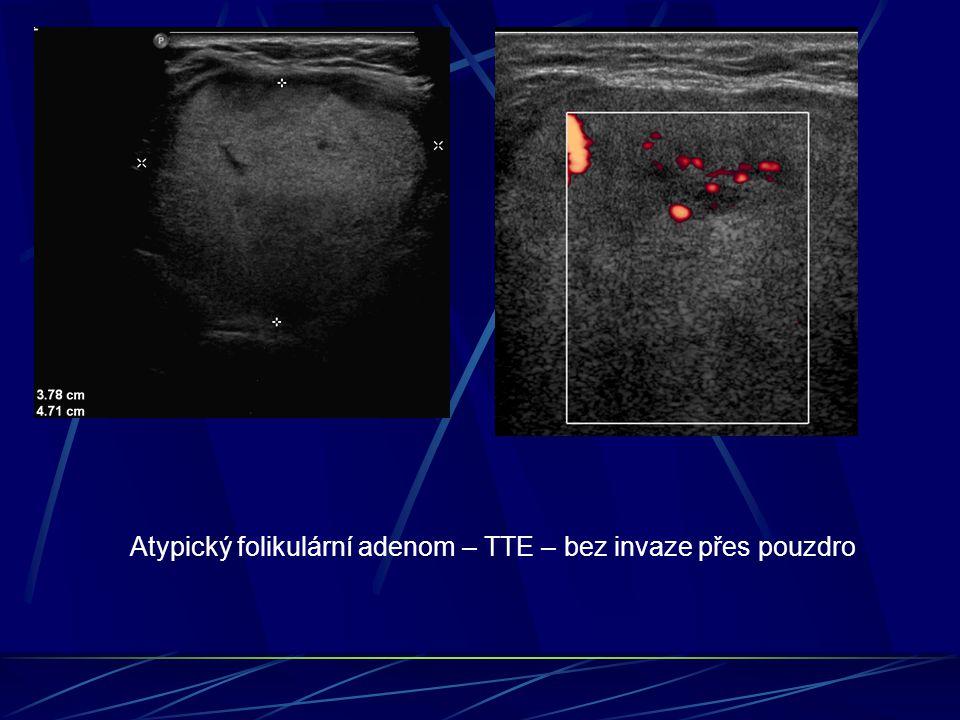 Atypický folikulární adenom – TTE – bez invaze přes pouzdro