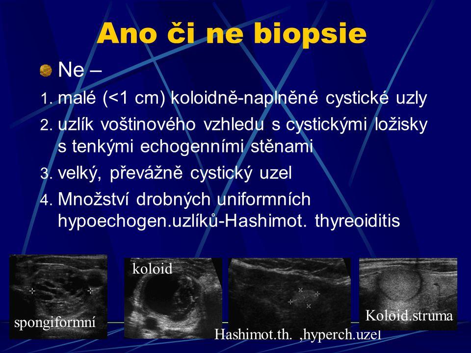 Ano či ne biopsie Ne – malé (<1 cm) koloidně-naplněné cystické uzly
