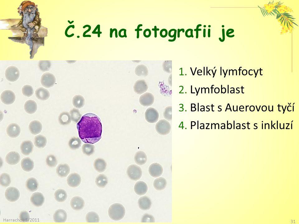 Č.24 na fotografii je Velký lymfocyt Lymfoblast Blast s Auerovou tyčí