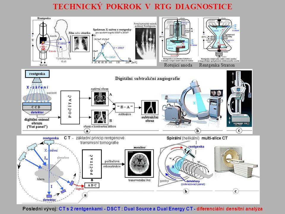 TECHNICKÝ POKROK V RTG DIAGNOSTICE Digitální subtrakční angiografie