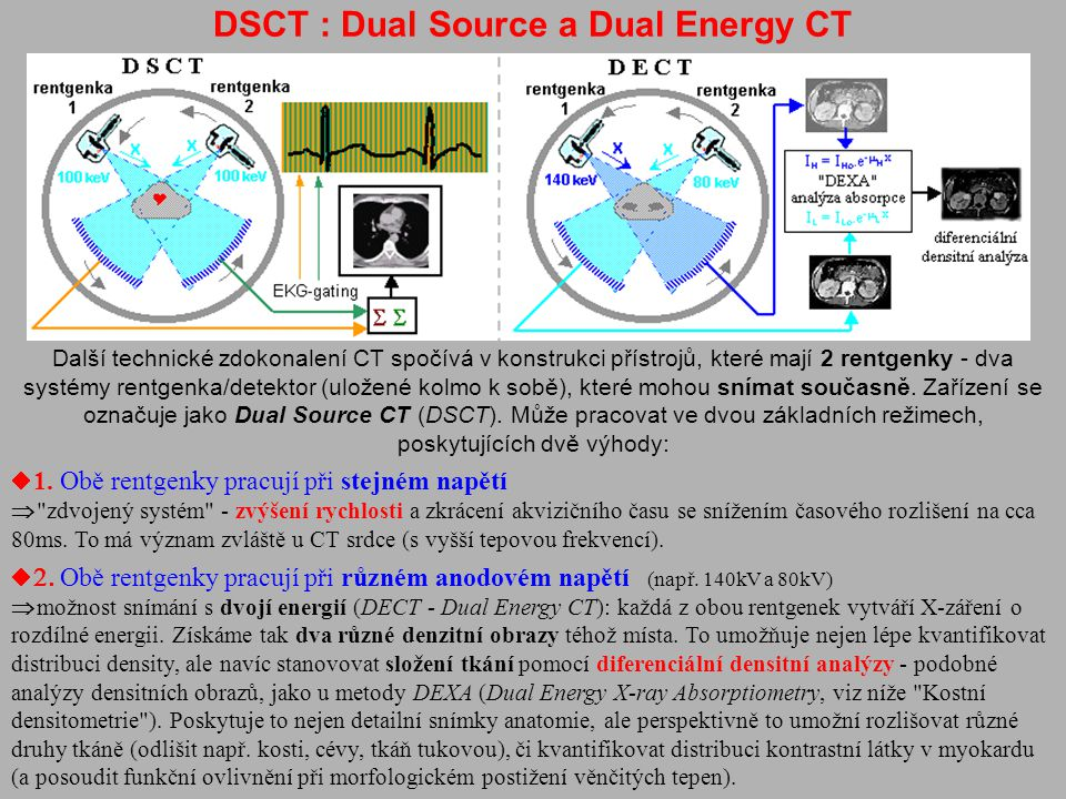 DSCT : Dual Source a Dual Energy CT