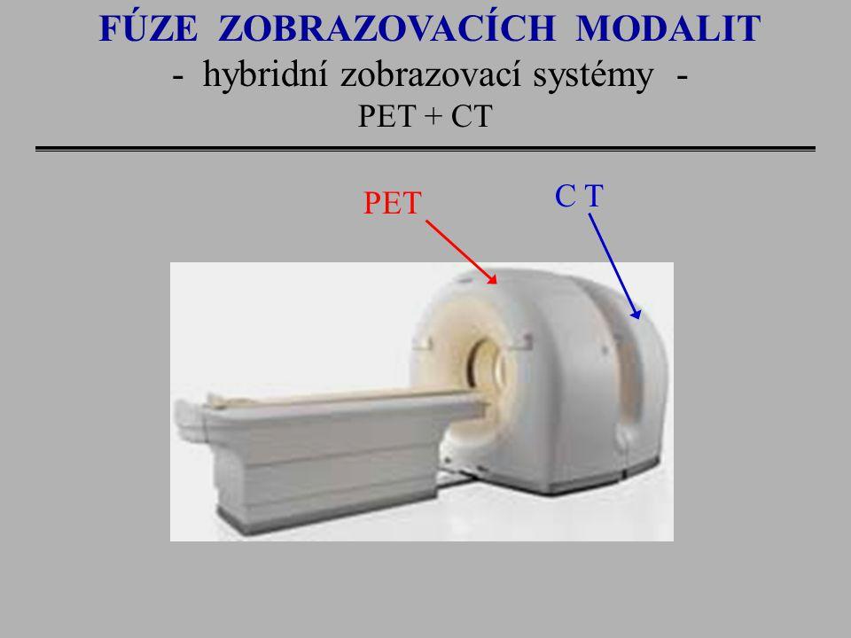 FÚZE ZOBRAZOVACÍCH MODALIT - hybridní zobrazovací systémy -