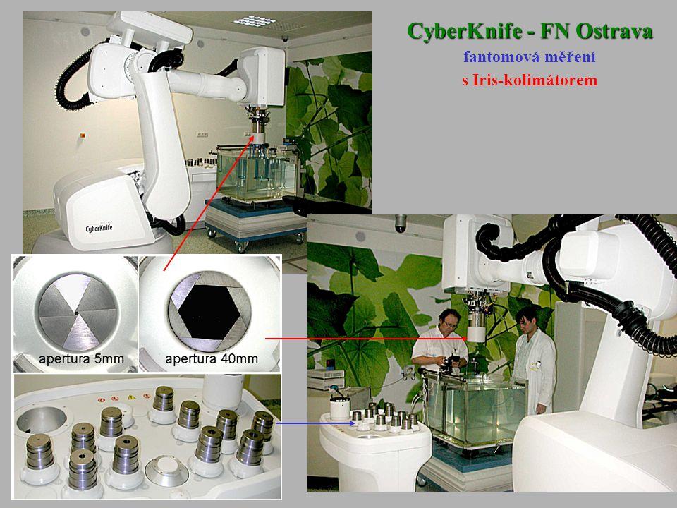 CyberKnife - FN Ostrava